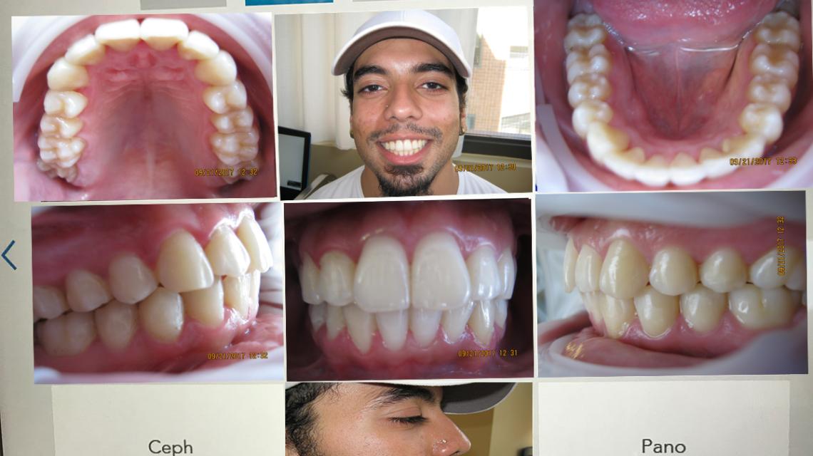 Patient Molly Papiin Teeth
